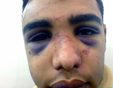 These are pictures of the young Bahraini man who was beaten, detained ...